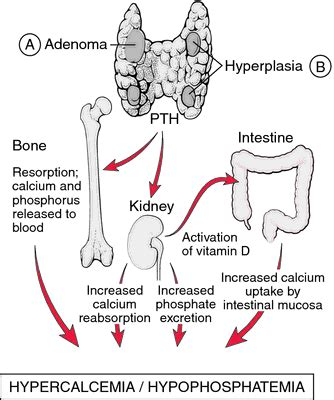 renal secondary hyperparathyroidism | definition of renal
