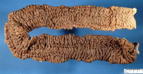 Ulcerative Colitis Stool Pattern by Ulcerative Colitis Humpath Human Pathology
