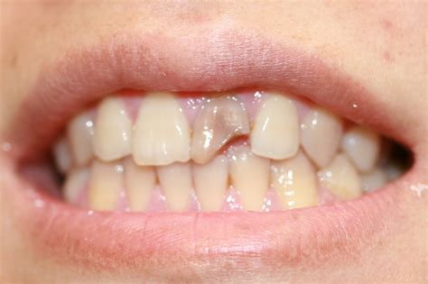 questions  primary factors  teeth whitening