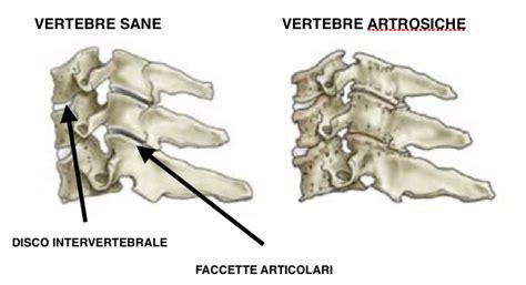 la cervicale che sintomi porta cos 232 l artrosi cervicale uncoartrosi o