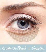 Krim Kantung Mata 4 jenis kantung mata dan penyebabnya kecantikan carapedia