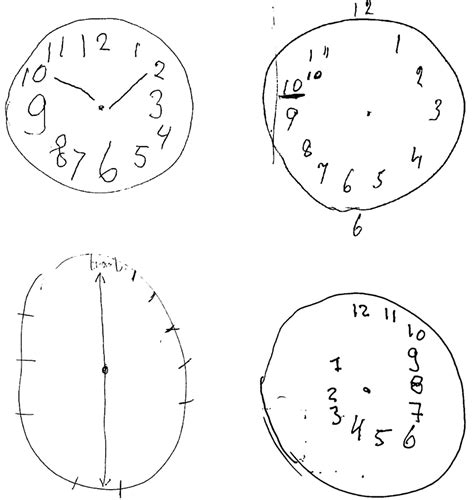clock drawing test clock drawing test for the dementia patient