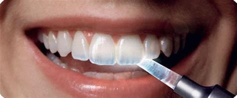 tooth wear management  kingston london   days