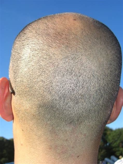 what cause prople bald in crown what are the different types of alopecia