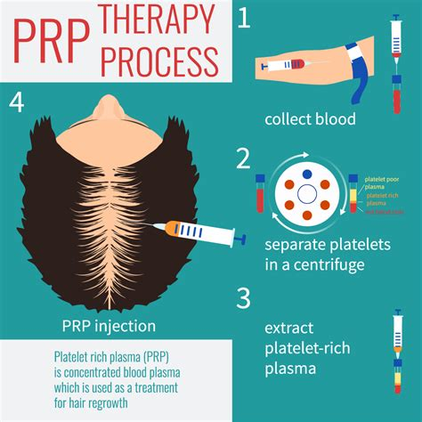 can platelet rich plasma stop hair loss and grow new hair blog the griffin center of hair restoration research