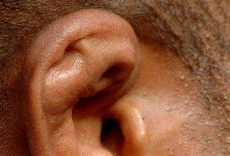 cauliflower ear pictures listen up all about ear conditions