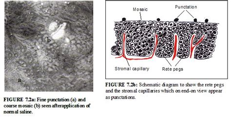 mosaic pattern in colposcopy colposcopy and treatment of cervical intraepithelial