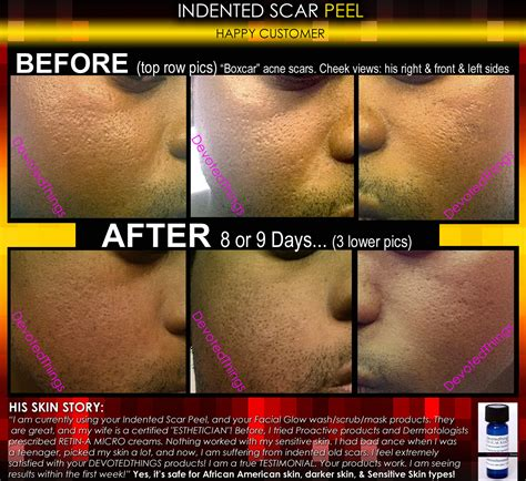 best treatment for scars best treatment for indented scars acne chicken pox pitted