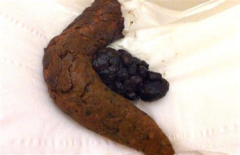 bruciore interno ano fecaloma tappo di feci durissime cause sintomi e rimedi