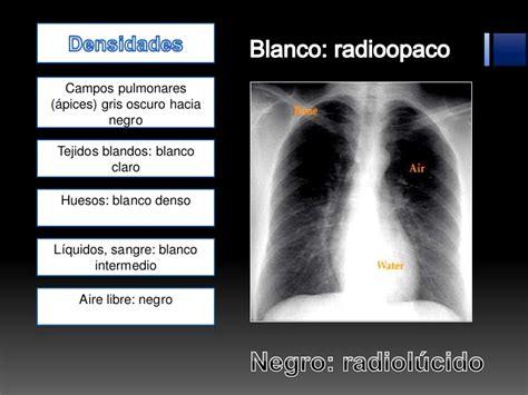 imagenes radiologicas pdf interpretacion de radiografia pa de torax o tele de torax