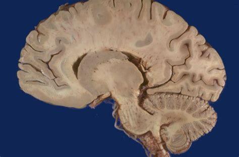 saggital section of brain neuroanatomy