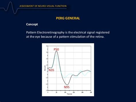 pattern erg iscev erg and vep lecture sept 20 2015
