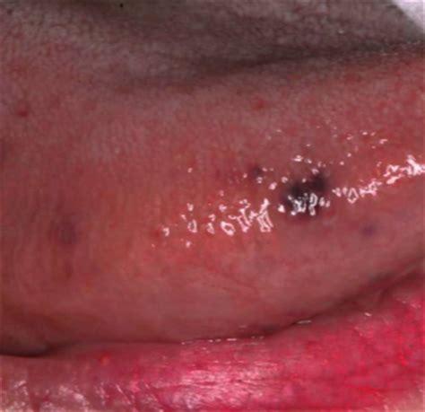 Black spots on tongue dark tiny small under tip sides std