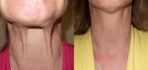 botox neck lift in phoenix amp scottsdale arizona