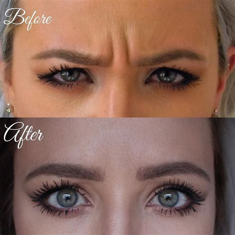 Botox Detox And Recovery Guide by Best 25 Botox Injection Ideas On Botox
