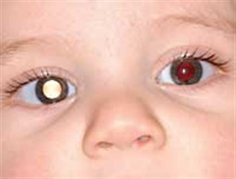 an introduction to infantsee eyedolatry
