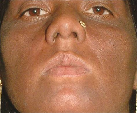 get rid of c section scar how to get rid of c section scar image gallery melanosis