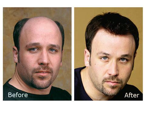 hairline restoration for men best hair replacement for men photos 2017 blue maize