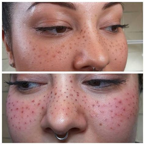 cosmetic tattoo freckles i had the pleasure of tattooing some freckles the other