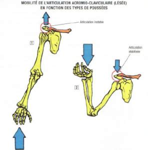 ac joint pain bench press acromioclavicular problems the stephane andre