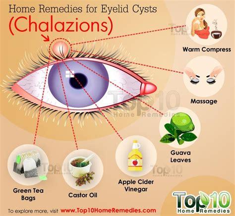 1000 ideas about eye cyst on myasthenia