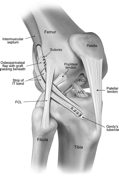 anterior cruciate ligament acl macintosh technique 28 acl anterior cruciate ligament