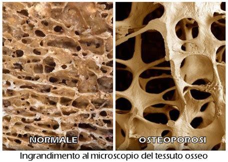 alimentazione per osteopenia sedute personalizzate per chi ha osteopenia o osteoporosi