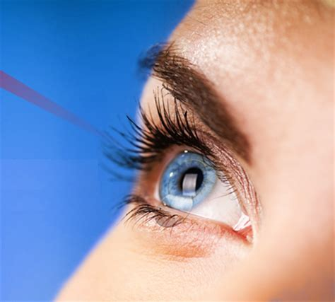 win free laser eye surgery with optical express