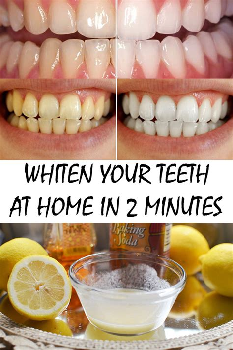 whiten your teeth at home in 2 minutes timeless