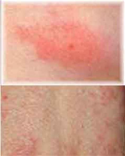 scabies vs bed bug bites pics for gt scabies bites on the arm
