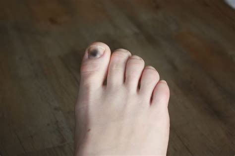 swollen toenail bed how to clear up dark toenails with pictures ehow