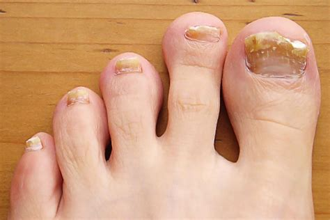 Nail Problems by Common Toenail Problems Symptoms Causes Treatment