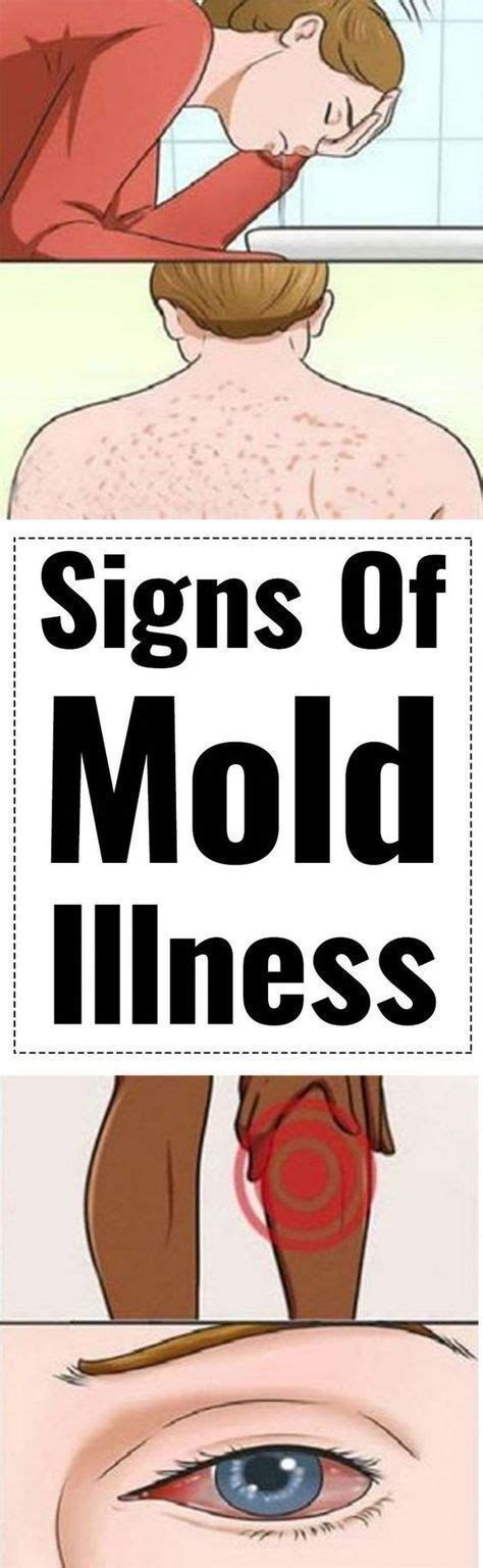 Black Mold Detox Diet Pistachios by Best 25 Mold Allergy Ideas On Mold Exposure