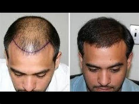 salman khan hair transplant cost rs 35 fue hair transplant hyderabad tel 91 40 666 888 12
