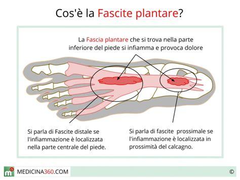 dolore tallone interno fascite plantare distale o prossimale sintomi cause e rimedi