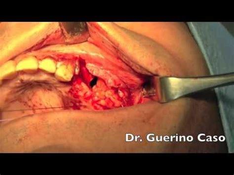 fistola sedere generieke kaakchirurgie