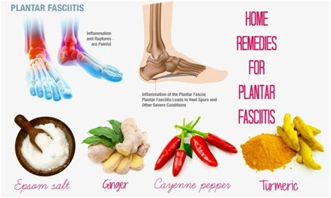 15 best home remedies for plantar fasciitis