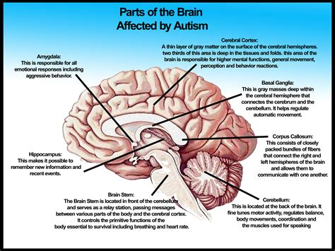 Brain Sections And What They Do by Parts Of The Brain Affected By Autism Studyautism