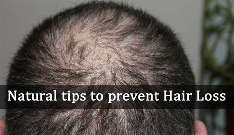10 Tips On How To Prevent Hair Loss by Tips To Prevent Hair Loss Uandblog