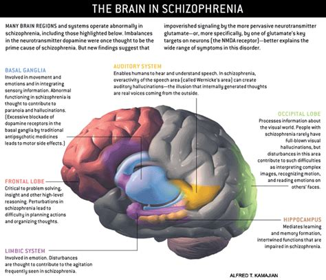 creativity the human brain in the age of innovation books schizophrenia schizophrenia pictures and images
