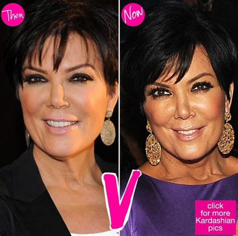 kris jenner what has happened to her face celebgoose kris jenner plastic surgery before and after celebrity