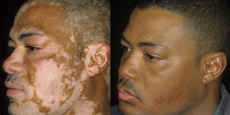 Vitiligo Tattoo Cost | cost pricing of permanent makeup tattoos and medical