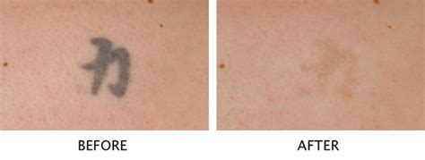 tattoo removal on brown skin laser removal salmon creek plastic surgery