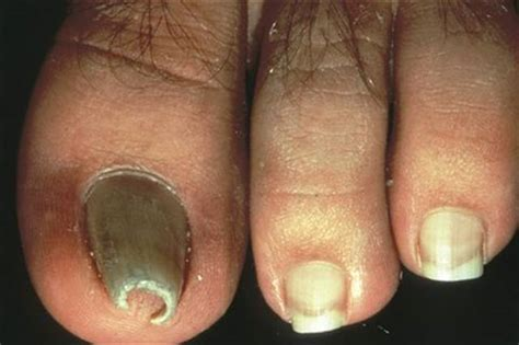 nail salon faqs skin problems center medical what are pincer nails health nails magazine