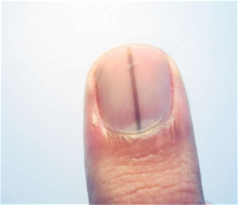 dark line on fingernail normal black line under fingernail vs melanoma streak