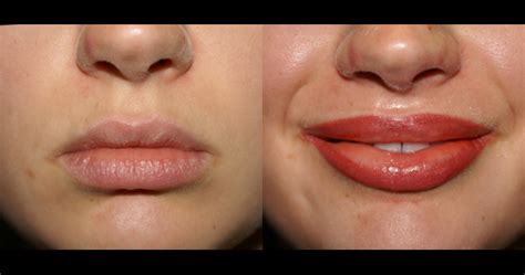lip tattoo to make lips bigger cosmetic tattoo sydney specialist microblading eyebrow