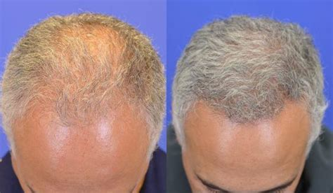 hair restoration before and after pictures clevens face fue hair transplant pictures charlotte nc patient 178