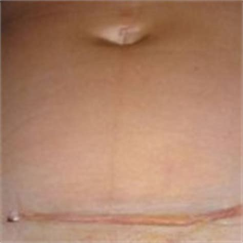C Section Scar Infection Symptoms by C Section Scar Pictures Treatment Removal
