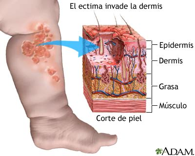 el da que espaa 8441435111 piodermites infec 199 213 es de pele por bact 201 rias 171 medderm