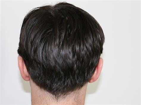 trockene haare und schuppen was hilft gegen schuppen